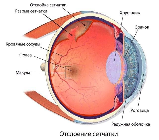 Укрепление сетчатки глаза лазером
