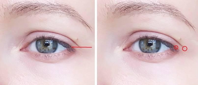 Внешние уголки глаз красные