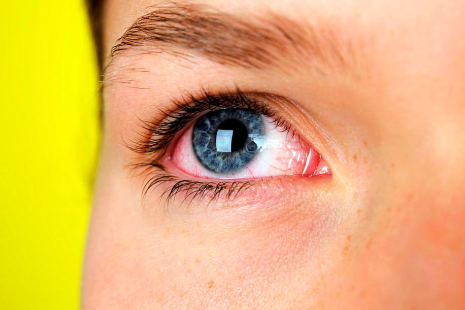 Проблемная ситуация: почему линза не прилипает к глазу и что при этом делать?