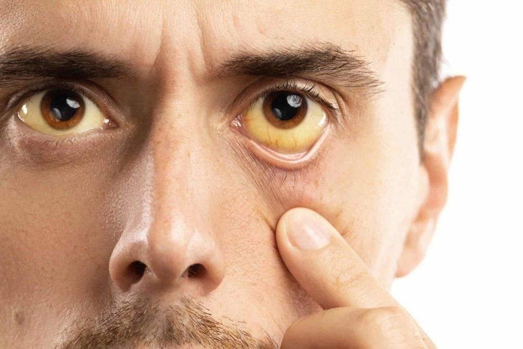 Как навсегда избавиться от нервного тика глаза