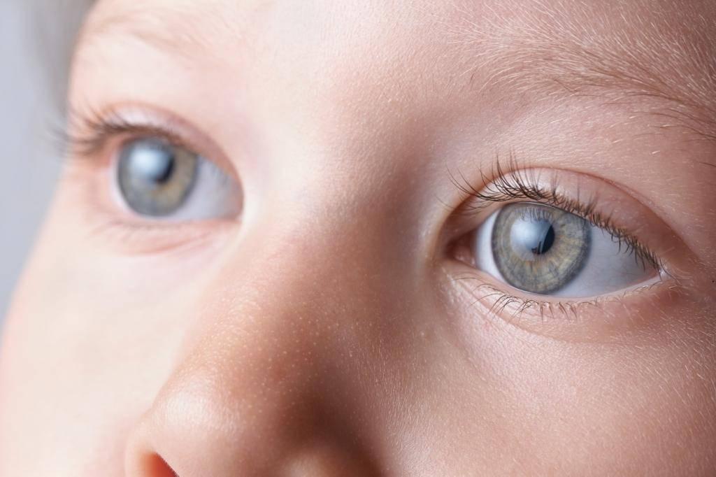 Катаракта у детей: причины, симптомы, лечение различных видов патологии