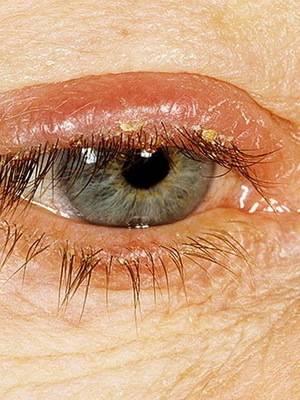 """Демодекоз век: симптомы и лечение - """"здоровое око"""""""
