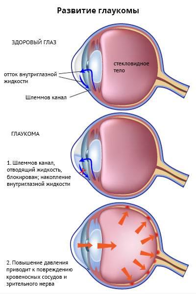 Глаукома: что это простыми словами, причины, симптомы на разных стадиях, признаки острого приступа, лечение