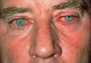 Демодекоз глаз: причины, симптомы и лечение