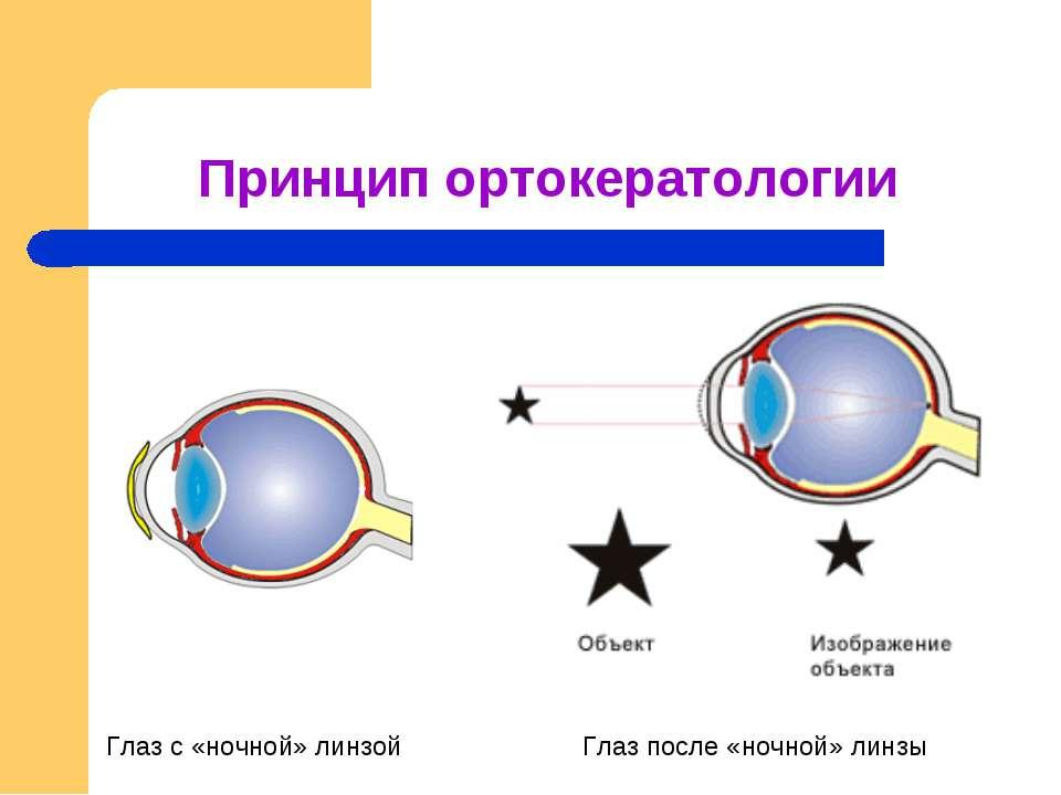 Осторожно: ночные линзы. | тренер зрения светлана костанда