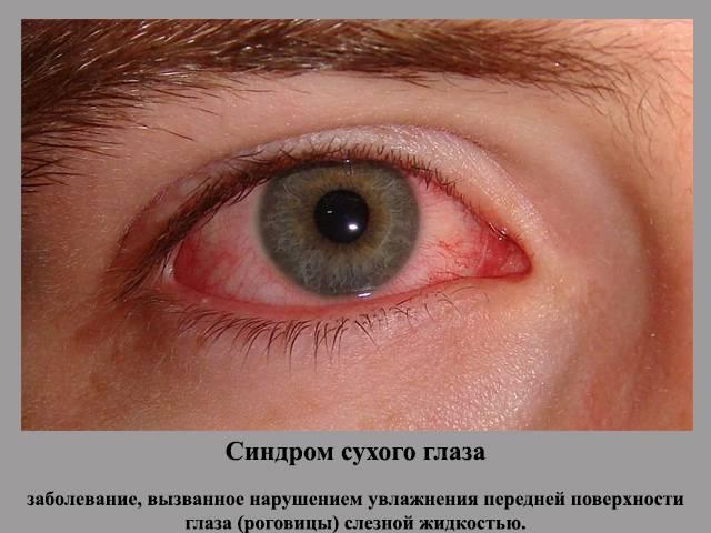Нервный тик глаза - причины, симптомы, лечение у взрослых