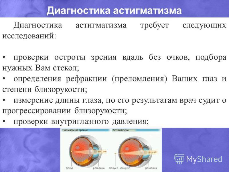 Виды астигматизма, классификация: простой, роговичный, спазм аккомодации, обратный, острый, неправильный, правильный, врожденный