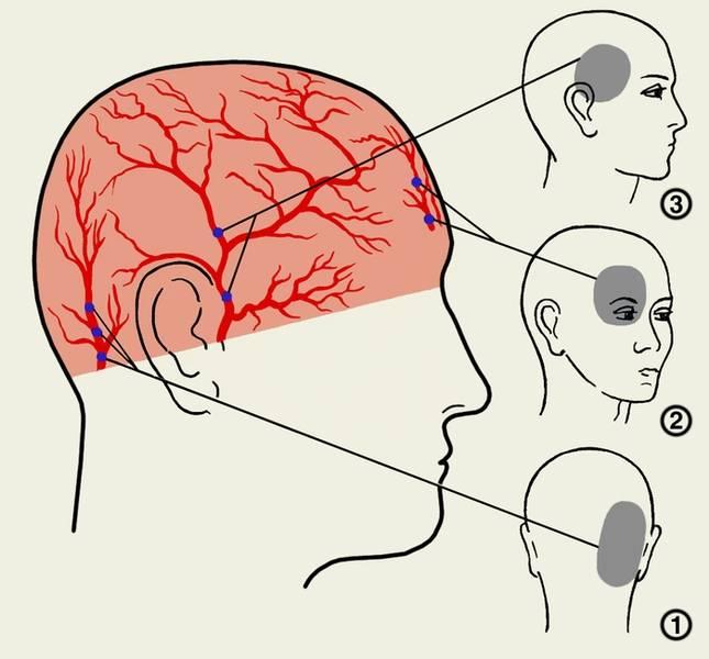 Почему болит глаз и голова с правой стороны