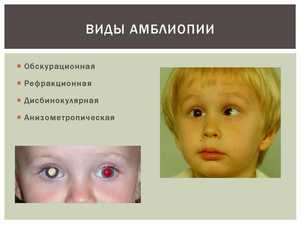 Амблиопия у детей: лечение синдрома ленивого глаза, степени по мкб-10, причины, гимнастика, что такое