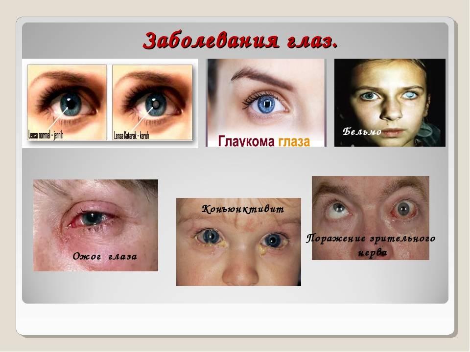 Причины и механизмы развития глазных болезней