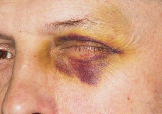 Ушиб глаза – что делать, первая помощь, последствия