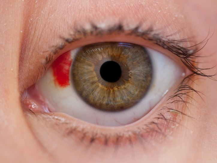 Гематома глаза после удара: лечение, последствия. гематома сетчатки глаза - sammedic.ru