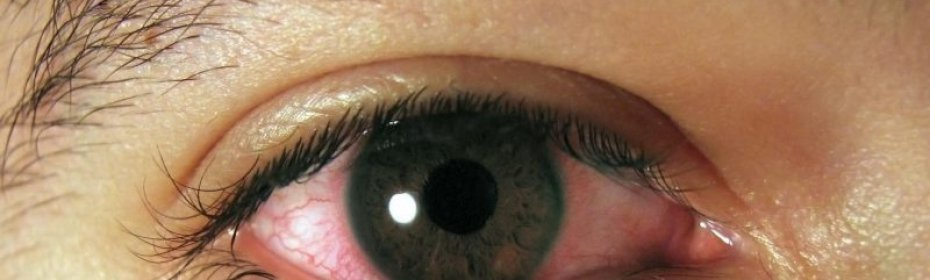 Почему закисают глаза у взрослого? - здоровое око | za-rozhdenie.ru
