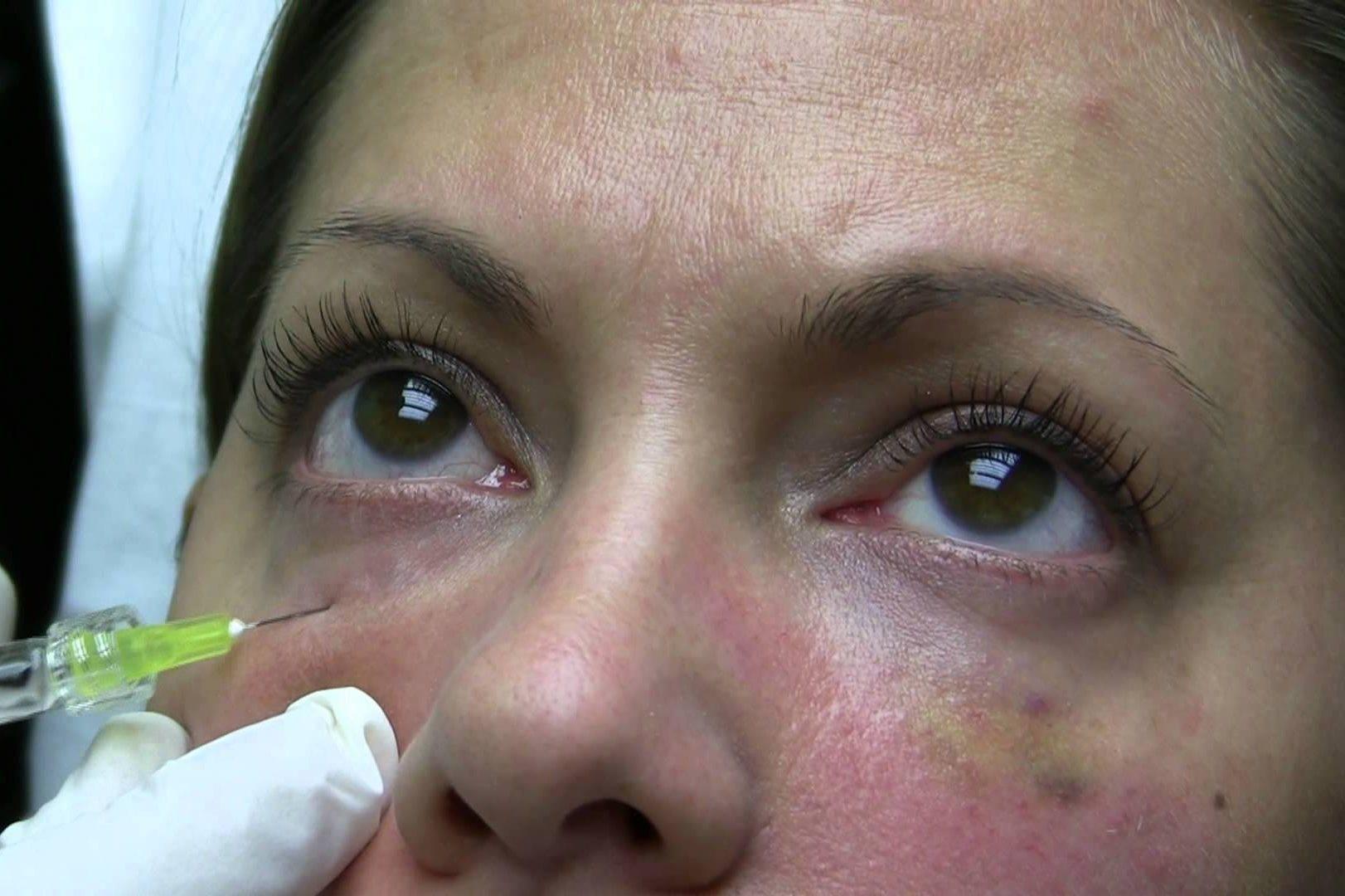 Биоревитализация под глазами: отзывы, фото