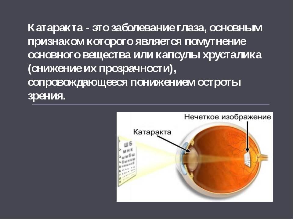 Факосклероз глаз лечение народными средствами