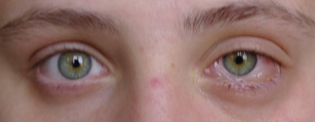 Слизистая глаза собирается гармошкой