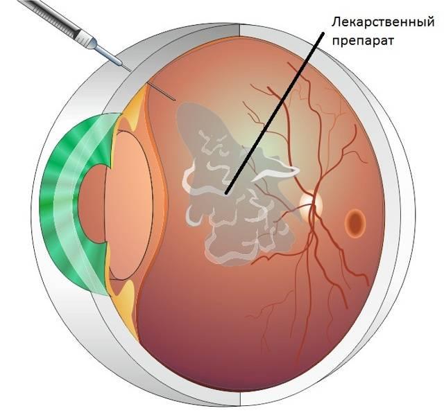 Уколы при лечении глаз
