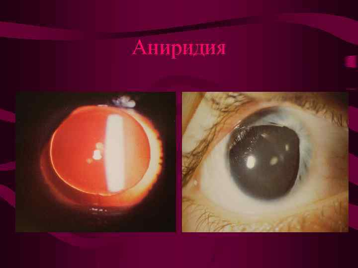 Аниридия – симптомы и лечение, фото и видео