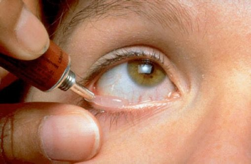 Глазные мази: от воспаления, от мешков под глазами, от отеков, от синяков и мази для детей