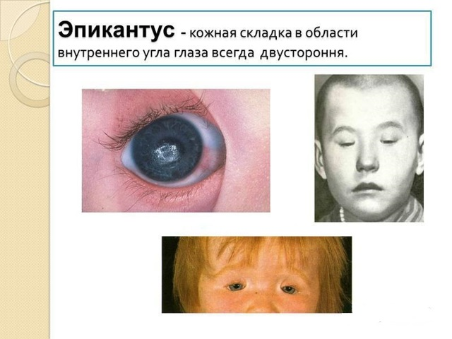 Фото до и после проведения операции по удалению эпикантуса