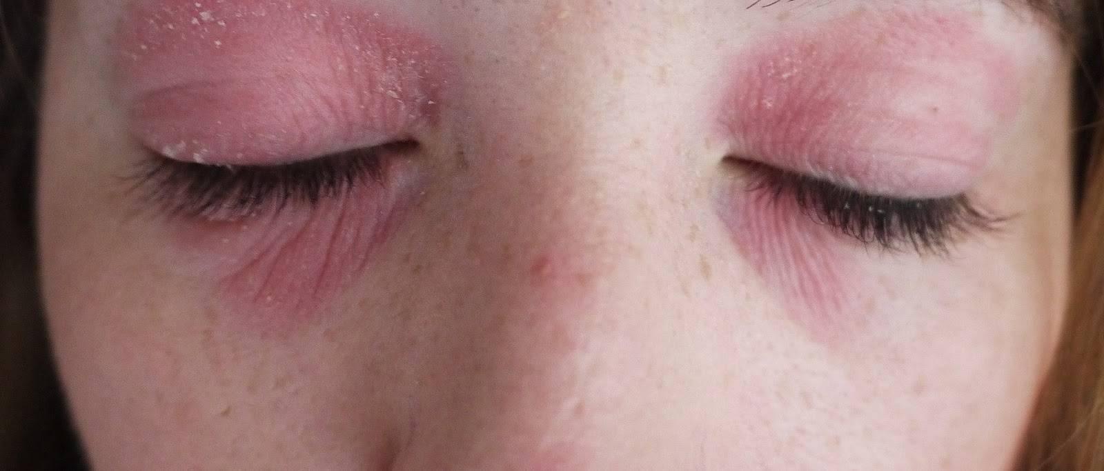 Почему может шелушиться кожа под глазами