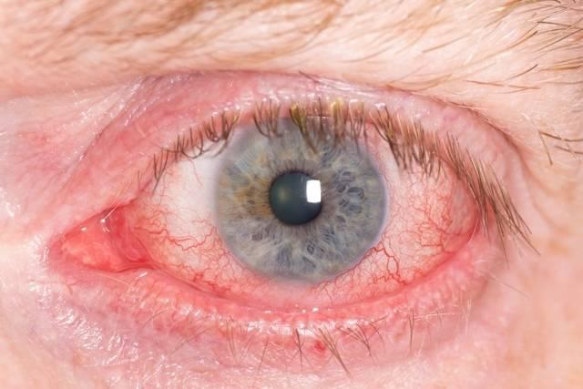 Мутные глаза у человека - причины мутного взгляда
