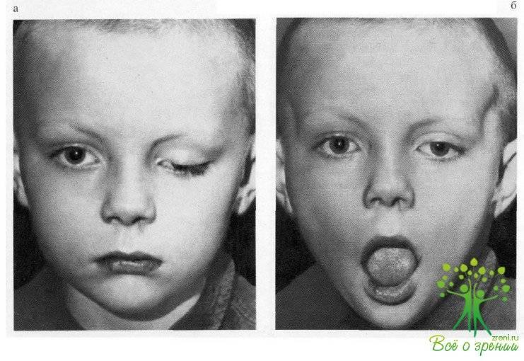 Гипертелоризм: что это за патология, как ее предотвратить, лечение