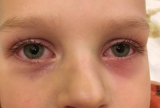 Красные круги под глазами почему. причины возникновения симптома у взрослых | школа красоты