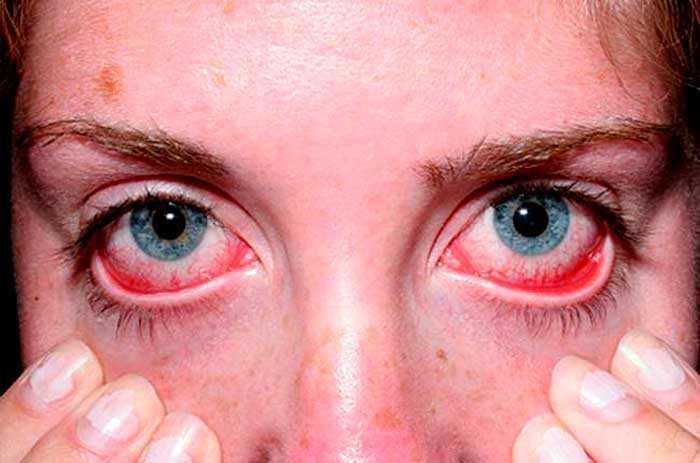 Грибковый конъюнктивит - признаки, симптомы, диагностика и средства лечения