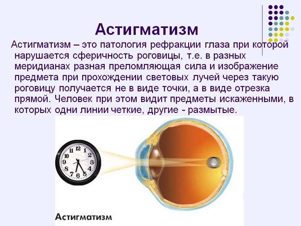 Сложный миопический астигматизм – причины, симптомы и лечение