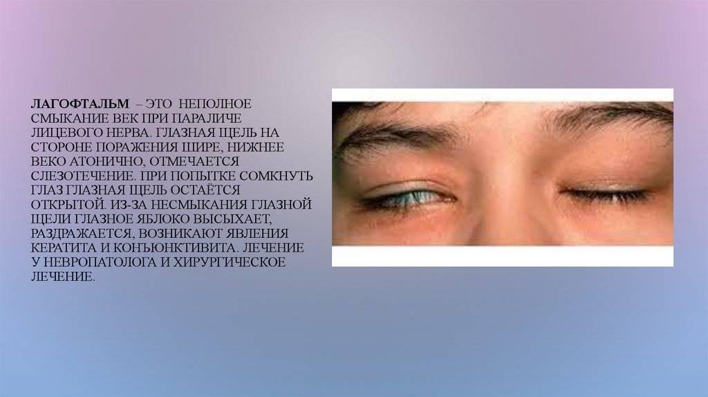 "Презентация на тему: ""птоз. лагофтальм. птоз птоз верхнего века (син. блефароптоз)"