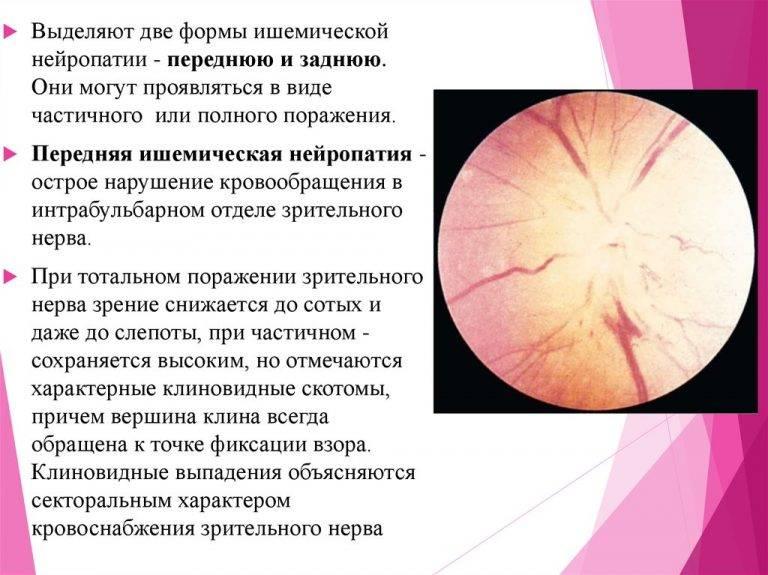 Оптическая нейропатия зрительного нерва - лечение демиелинизирующей нейропатии зрительного нерва   медицинский портал spacehealth