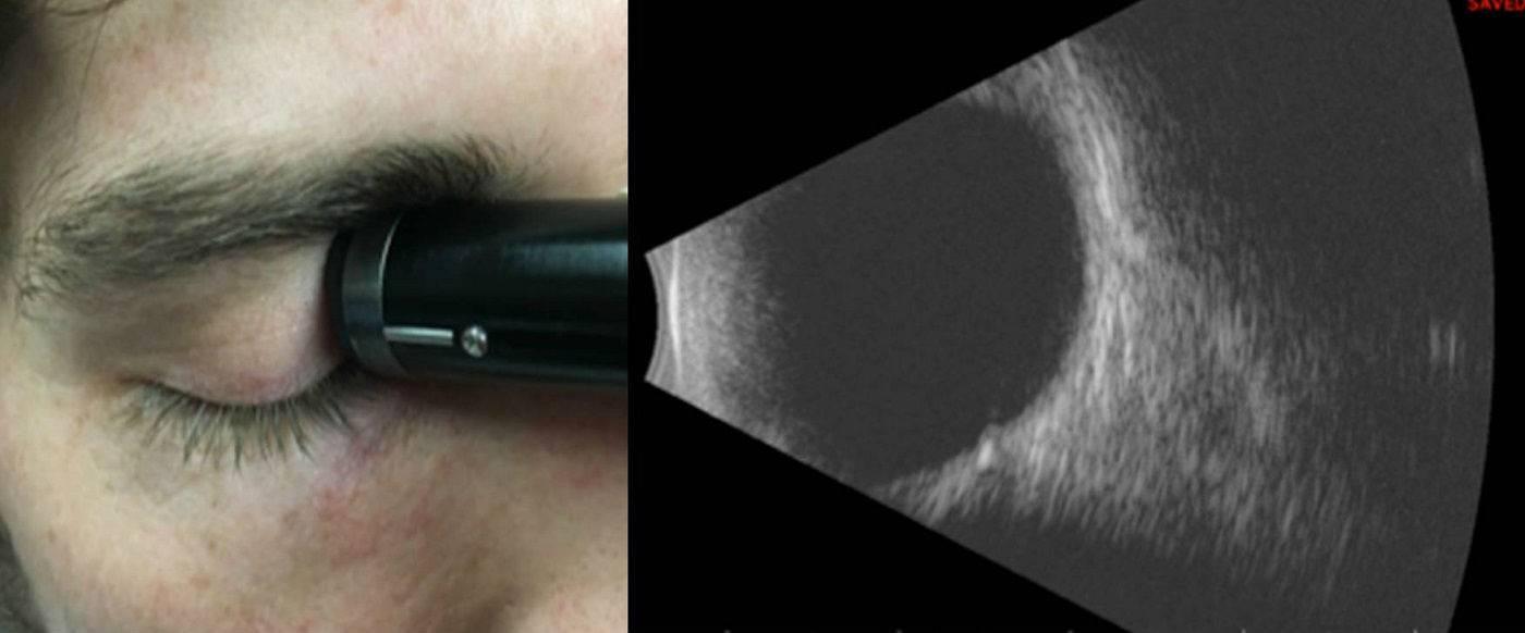 Узи глаз и глазного яблока как метод диагностики в офтальмологии