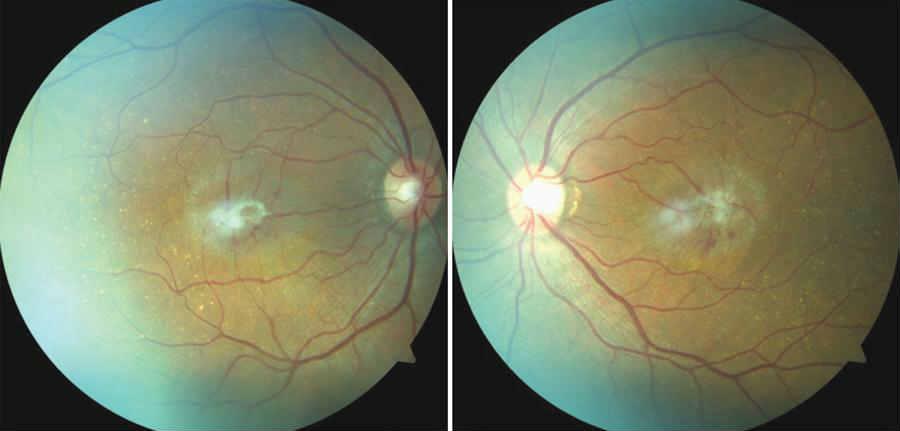 Что такое эпиретинальный фиброз глаз. народные рецепты для лечение фиброза сетчатки глаза - новая медицина