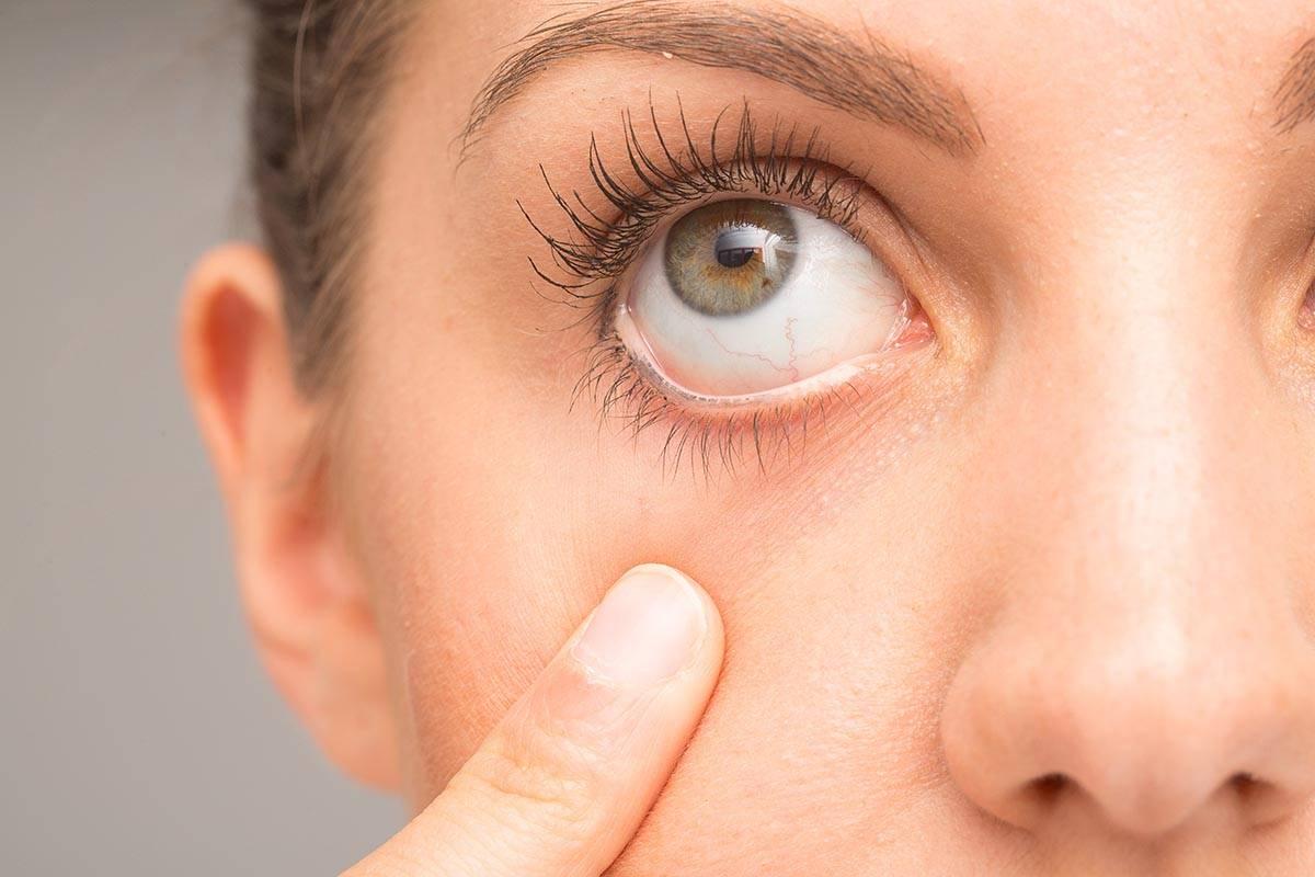 Что за болезнь сухой глаз, симптомы, лечение, капли