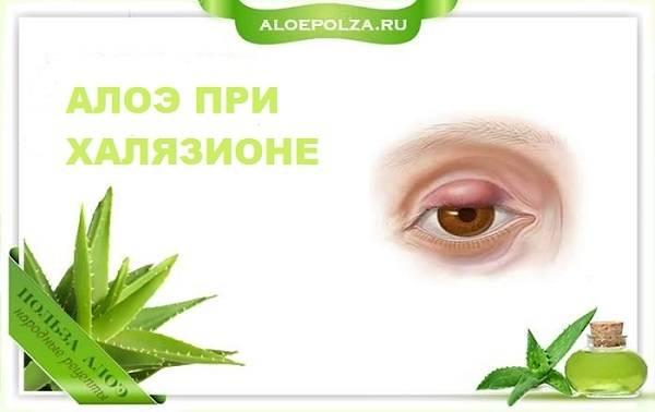 """Лечение халязиона века в домашних условиях - """"здоровое око"""""""