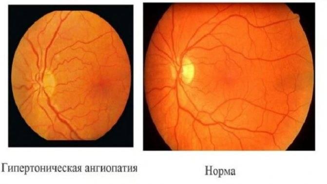 Что такое ангиопатия сосудов сетчатки обоих глаз и как лечить