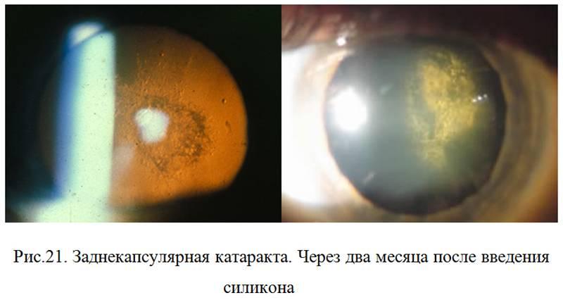 Чем опасна врожденная форма катаракты и как ее вылечить?