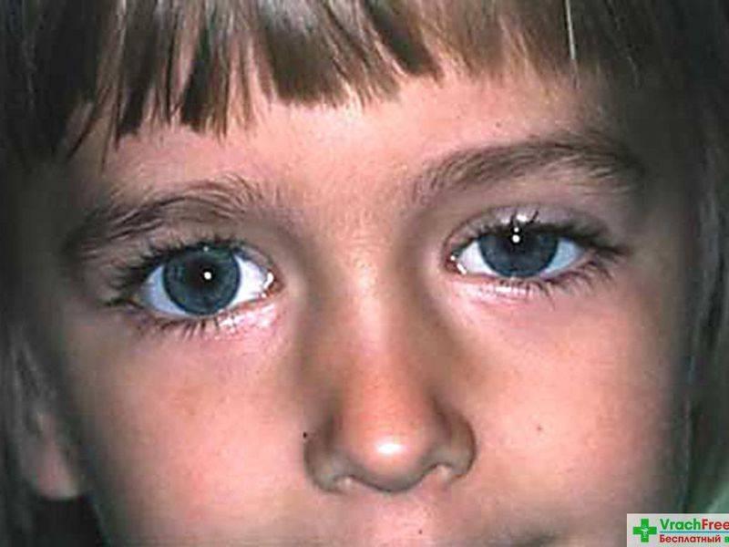 Возможные причины, ассиметричного размера глаз