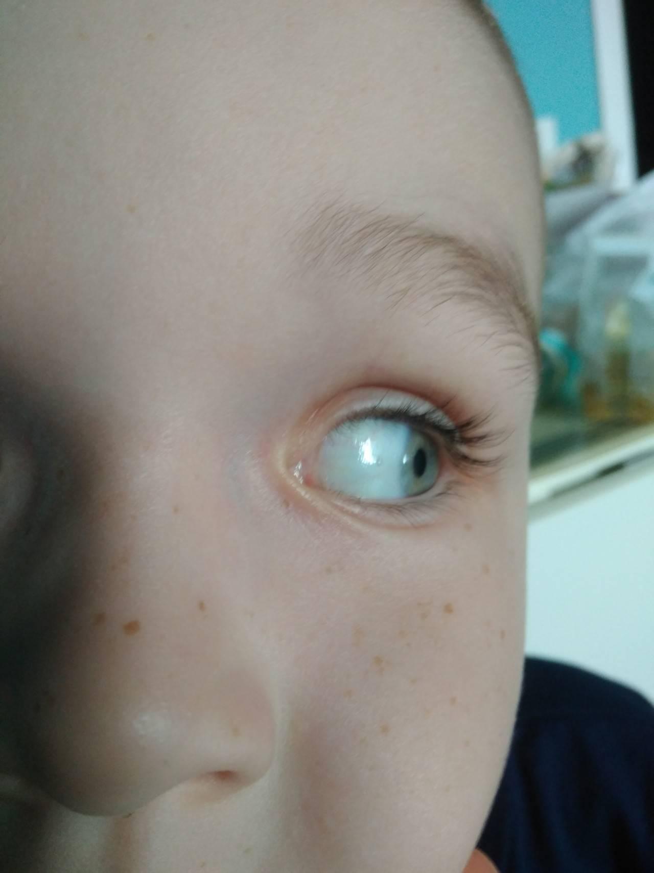 Желтые белки глаз у новорожденных (причины)