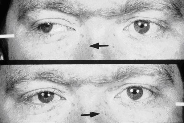 Офтальмоплегия - причины, симптомы и эффективные методы лечения заболевания