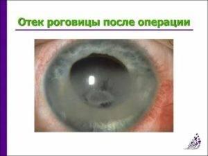 Восстановление зрения после операции катаракты – осложнения, профилактика