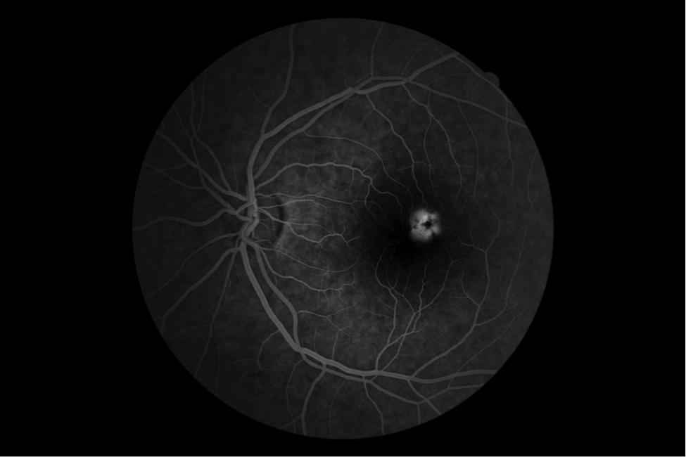 Флуоресцентная ангиография (фаг) сетчатки глаза - что это, как проводят, расшифровка результатов