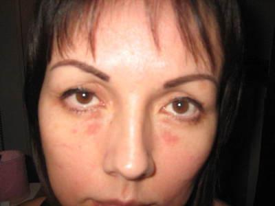 Красные точки под глазами: что делать если шелушатся и чешутся красные пятнышка