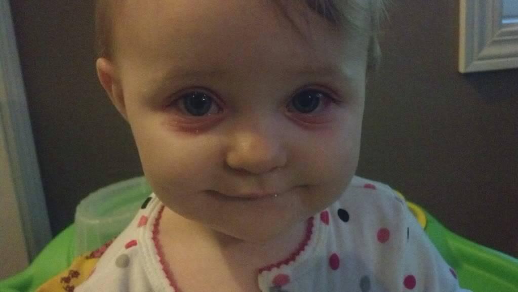 Синяки под глазами у ребенка: как найти и устранить причину появления синяков у детей