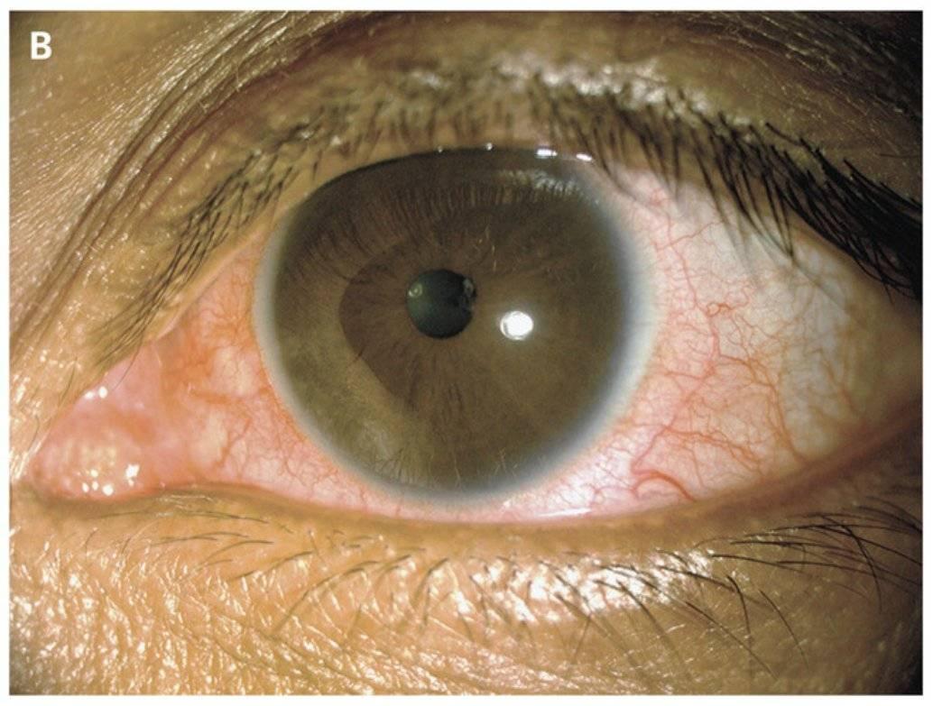 Увеит глаза: характеристика, виды, причины, симптомы и методы лечения