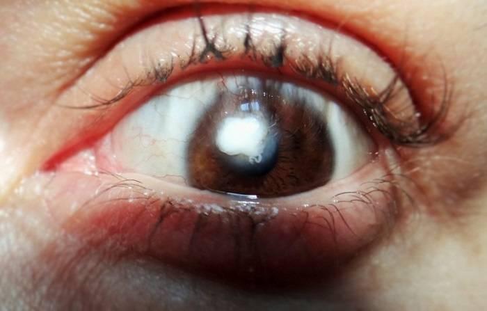 Как можно лечить помутнение роговицы глаза?