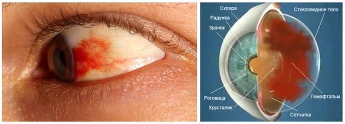 Что такое гемофтальм глаза: причины и лечение oculistic.ru что такое гемофтальм глаза: причины и лечение