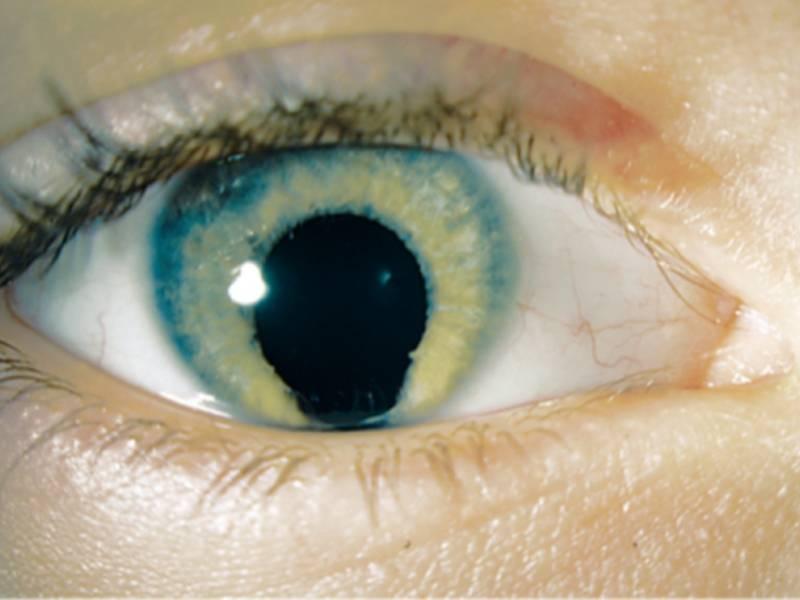 Что значит стеклянные глаза. стеклянные глаза: что означает симптом и как с ним бороться