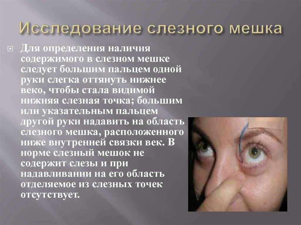 Заболевания слезного аппарата. дакриоденит, дакриоцистит, сужение слезной точки, флегмона слезного мешка.